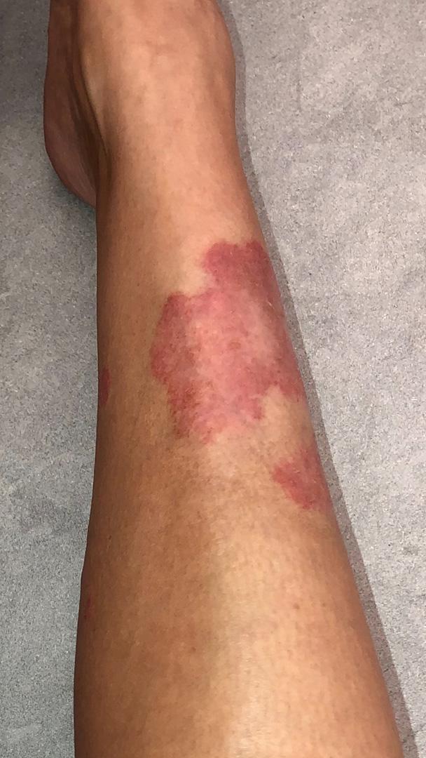 Kim Kardashian West Psoriasis breakout on leg photo
