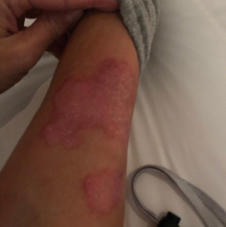 Kim Kardashian West Psoriasis photo on her arm