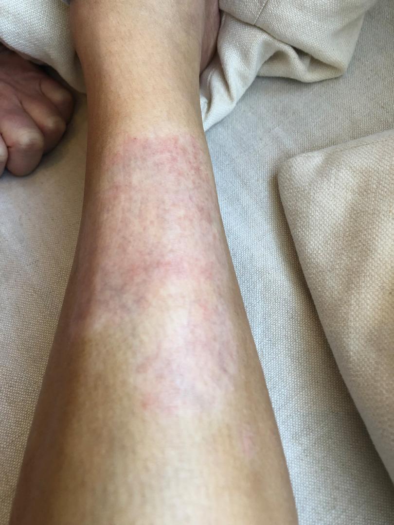 Kim Kardashian West Psoriasis photo on her leg