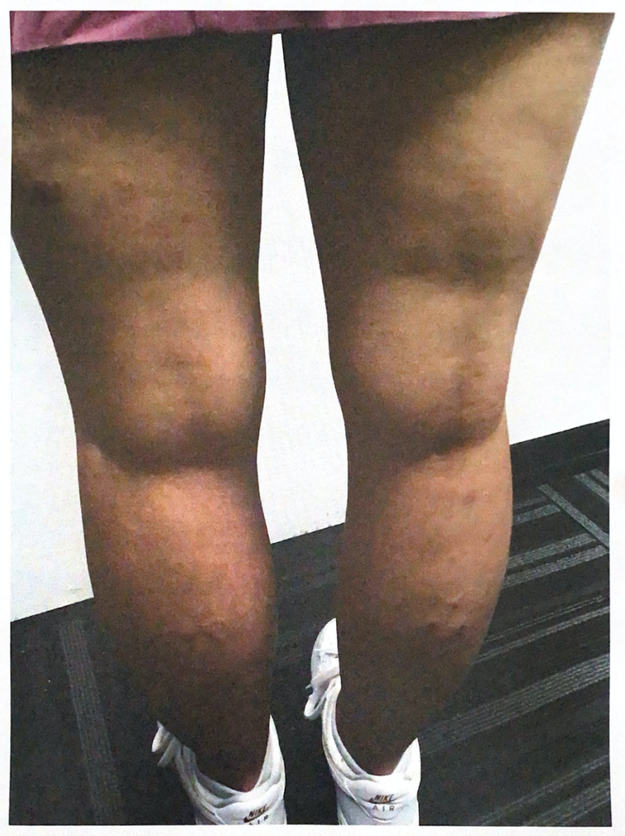 severe eczema on legs after treatment
